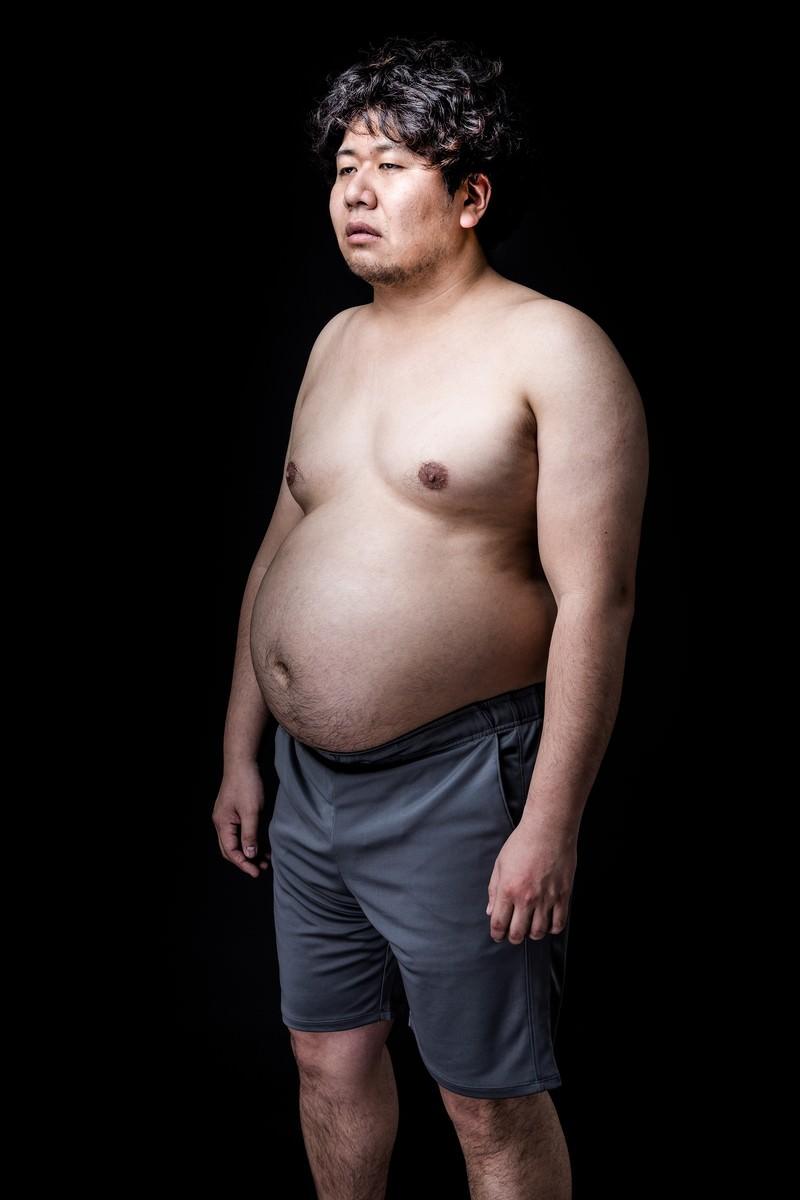 「たった2ヶ月で、このカラダ(肥満)」の写真[モデル:朽木誠一郎]
