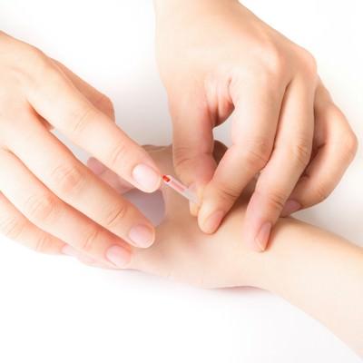 「手のツボに鍼をさす様子」の写真素材