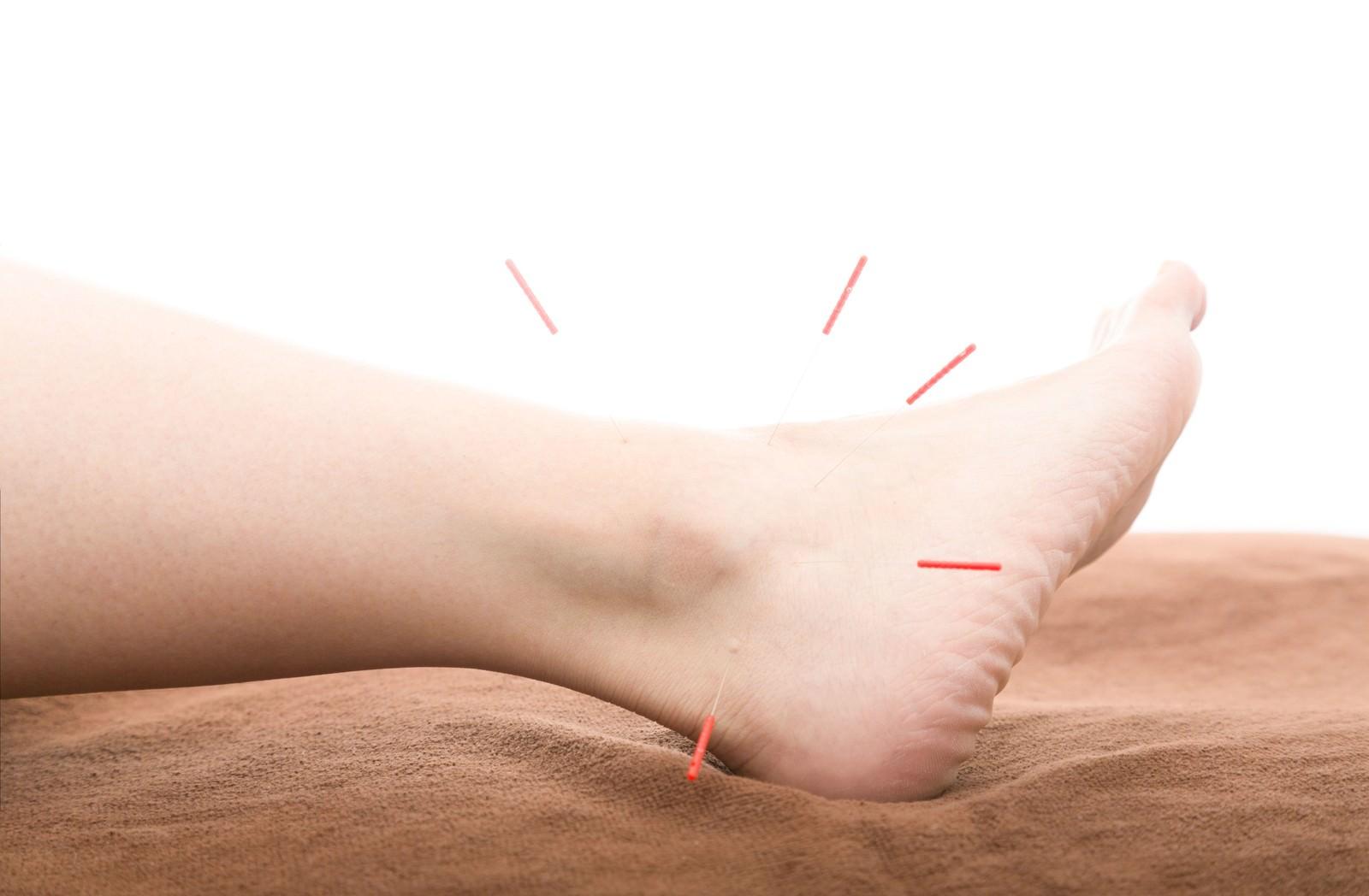「足首を中心とした鍼治療 | 写真の無料素材・フリー素材 - ぱくたそ」の写真