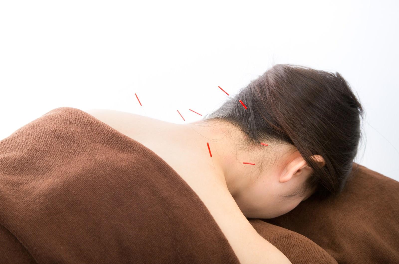 「鍼灸治療」の画像検索結果