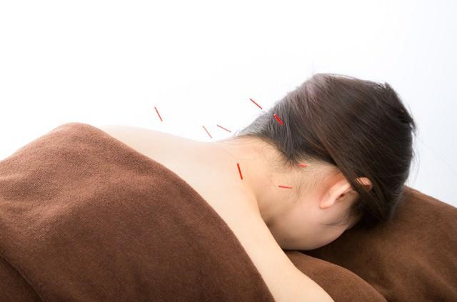 首の鍼治療の写真