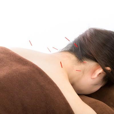 「首の鍼治療」の写真素材