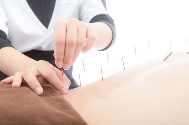 背中に鍼をさす鍼灸師の写真