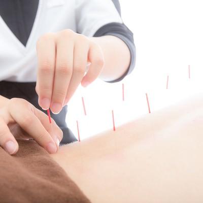 「背中に鍼をさす鍼灸師」の写真素材