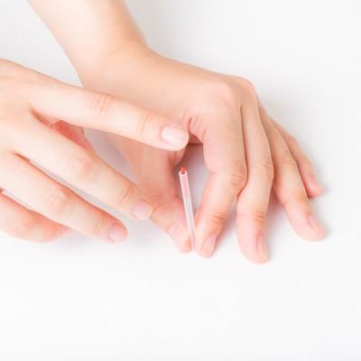 「鍼治療の練習」の写真素材