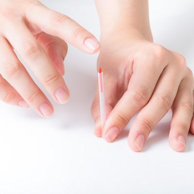 「プロの鍼治療の様子」の写真素材