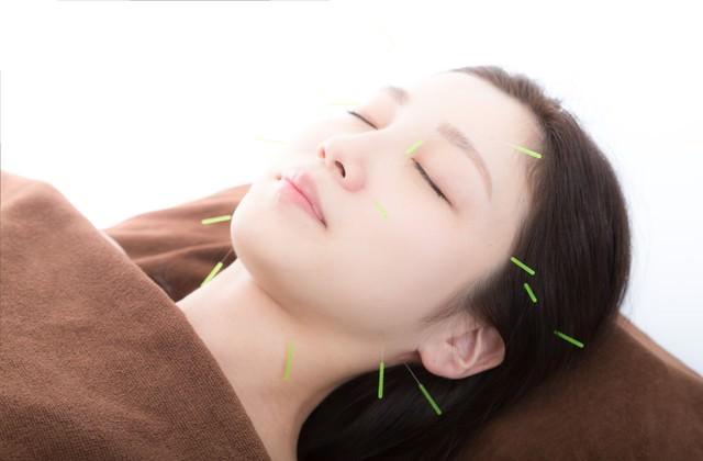 顔の美容鍼(びようしん)の写真