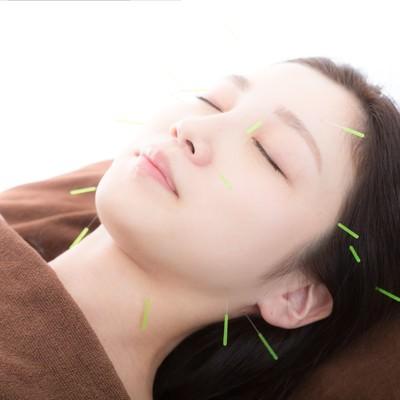 「顔の美容鍼(びようしん)」の写真素材