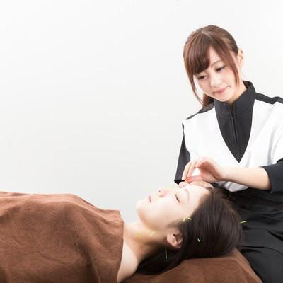 「顔に鍼治療を施す」の写真素材