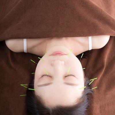「美容鍼」の写真素材