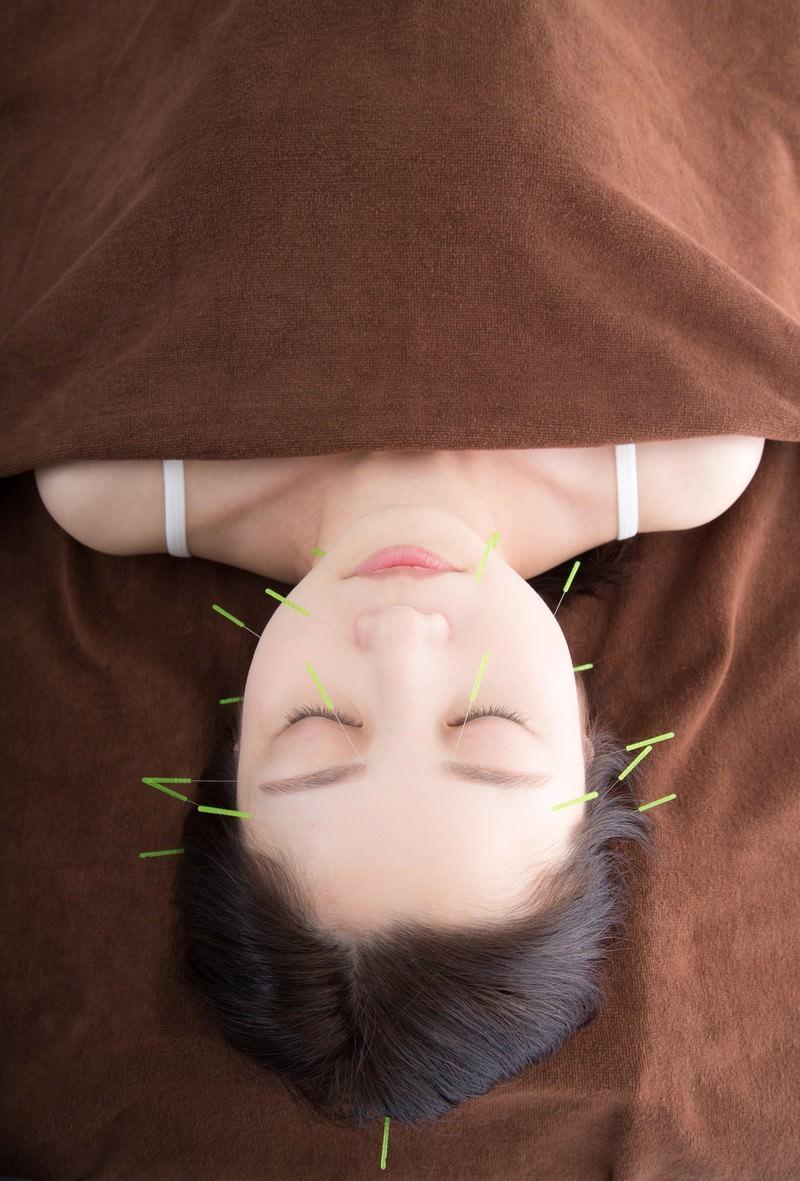 「美容鍼」の写真