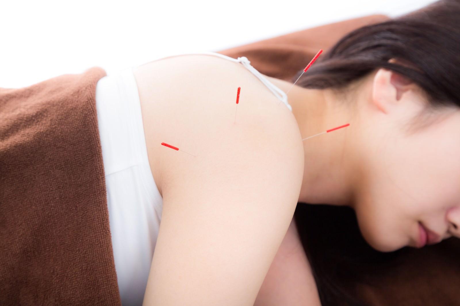 「鍼治療をする女性鍼治療をする女性」のフリー写真素材を拡大