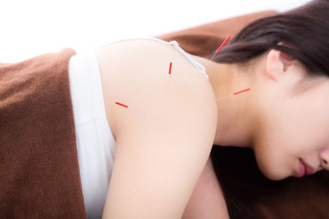 鍼治療をする女性