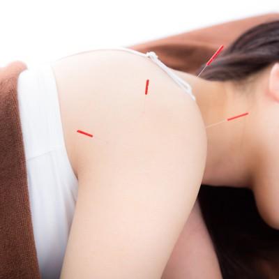 「鍼治療をする女性」の写真素材