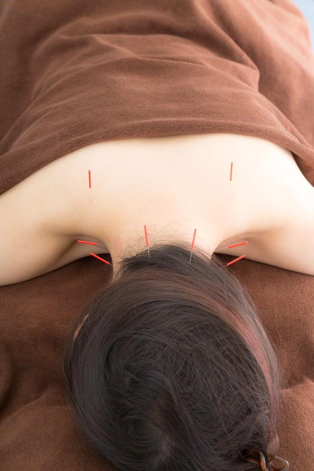 鍼治療で肩こりを解消