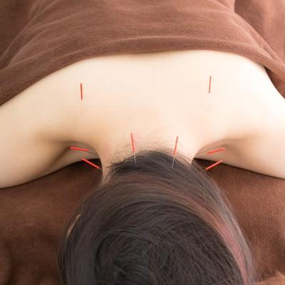 「鍼治療で肩こりを解消」の写真素材