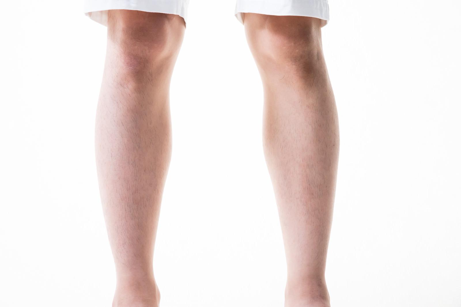 「男性の足のすね毛(6mm)」の写真