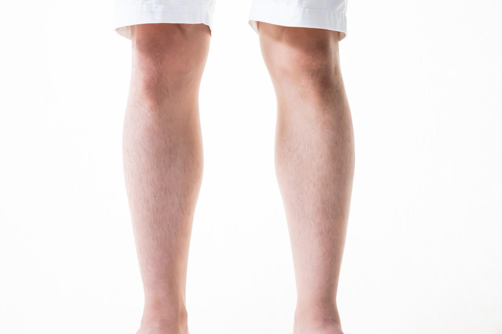 「足のすね毛を3mmにカット(男性)」の写真