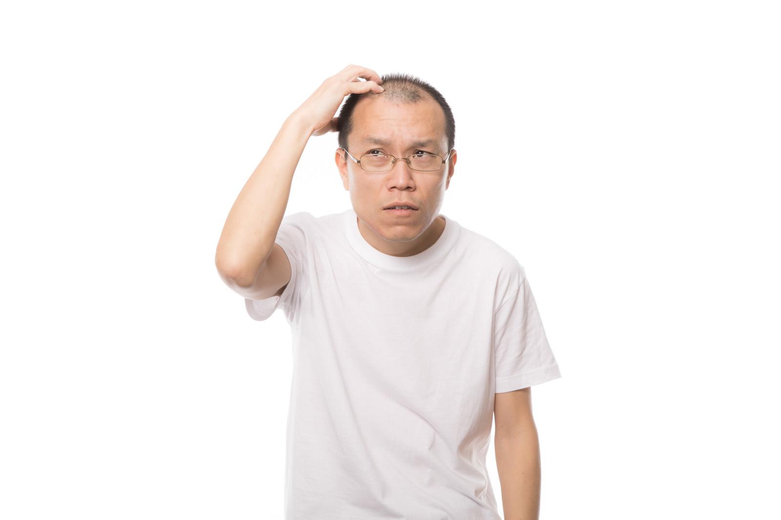 「薄毛を気にする男性」の写真[モデル:サンライズ鈴木]