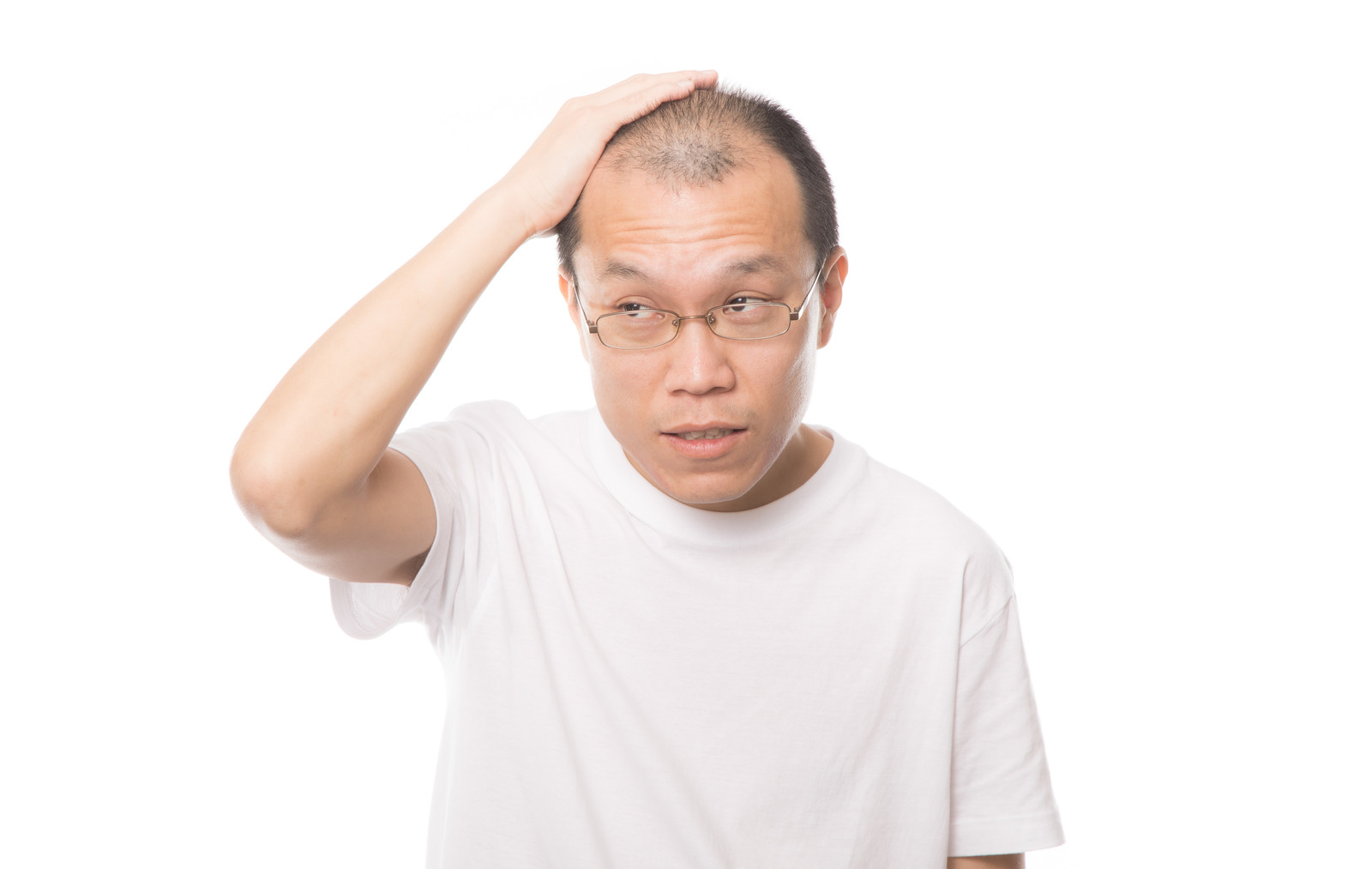 「人目を気にするM字禿げの男性」の写真[モデル:サンライズ鈴木]