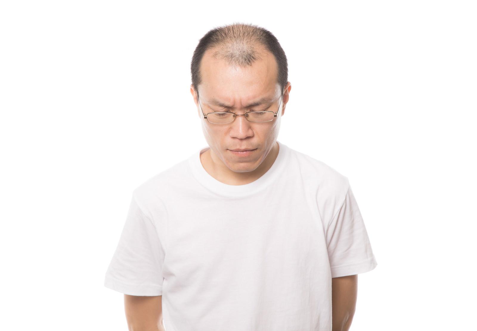 「髪(薄毛)の悩みを深刻に考える男性」の写真[モデル:サンライズ鈴木]