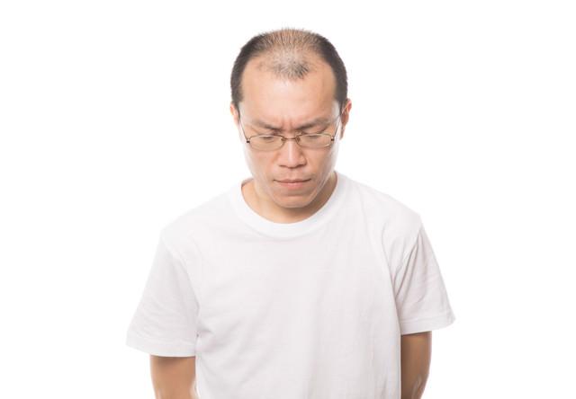 髪(薄毛)の悩みを深刻に考える男性の写真