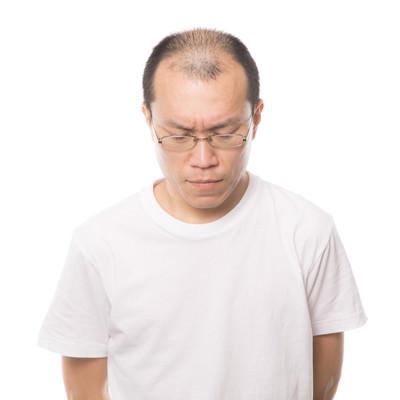 「髪(薄毛)の悩みを深刻に考える男性」の写真素材