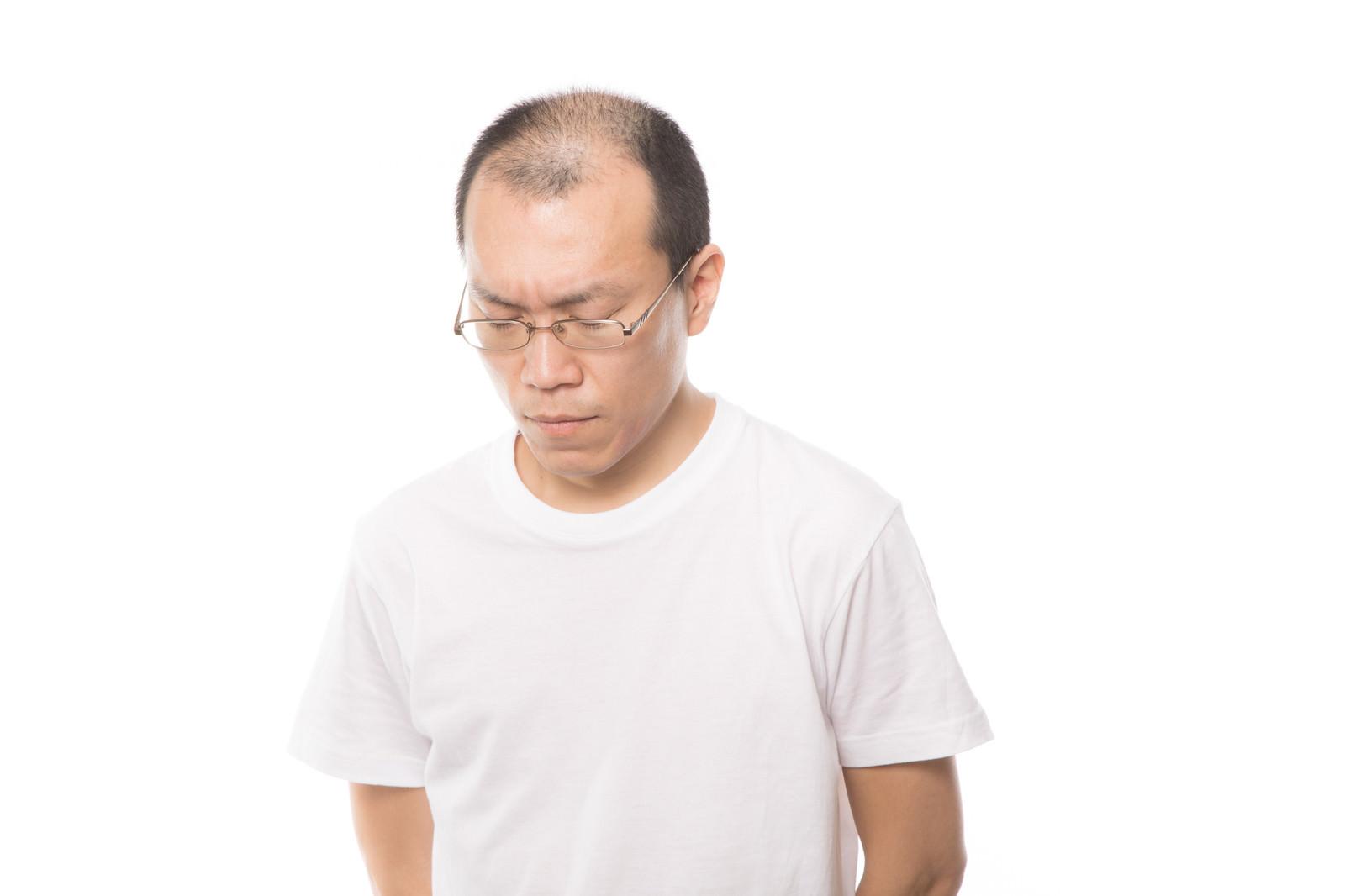 「薄毛に悩む男性」の写真[モデル:サンライズ鈴木]