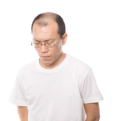 薄毛に悩む男性の写真