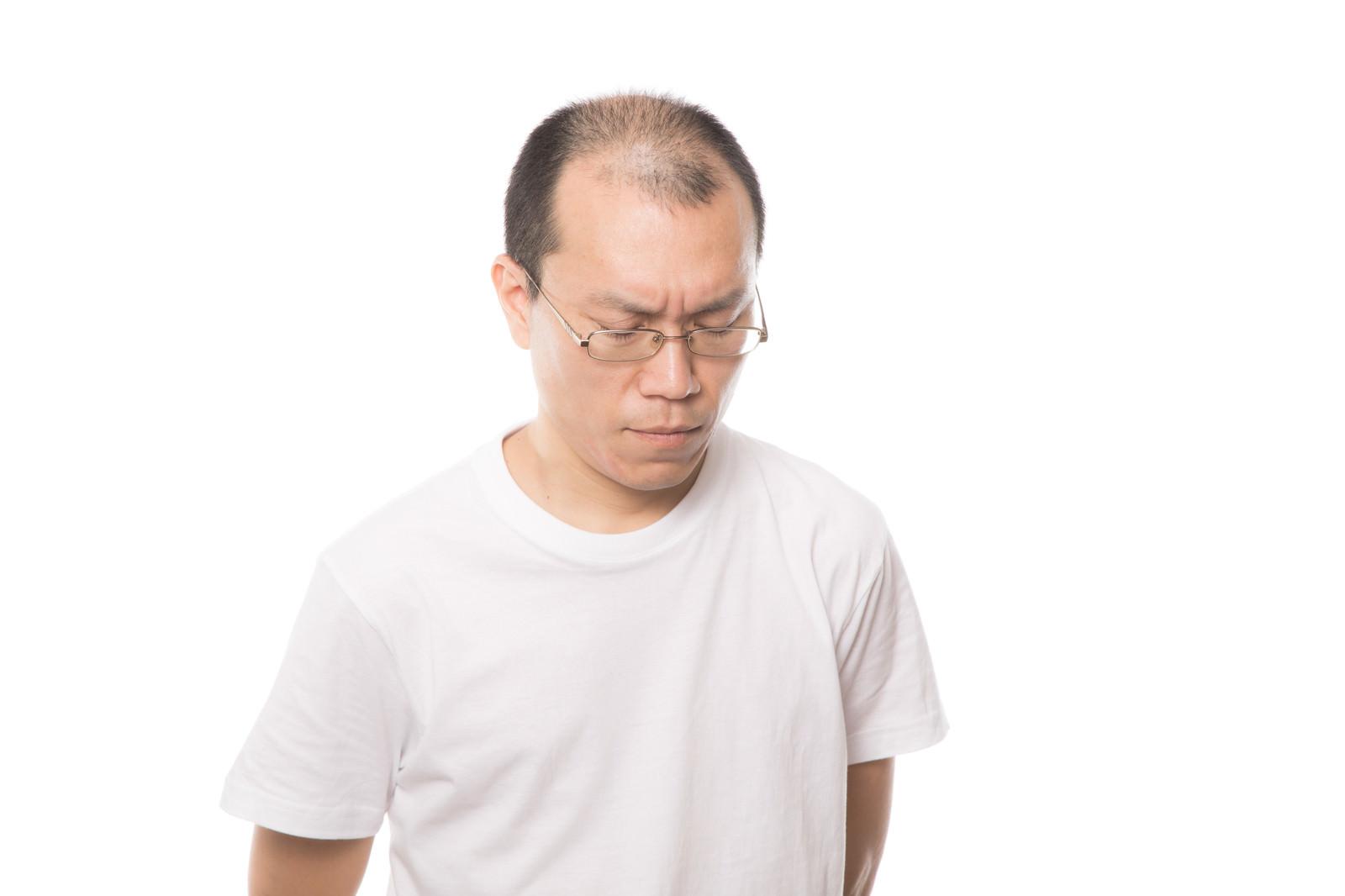 「薄毛を気にして苦しむ男性」の写真[モデル:サンライズ鈴木]