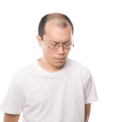 「薄毛を気にして苦しむ男性」の写真素材
