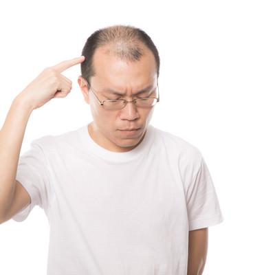 今、考えごとをしている最中の薄毛男性の写真