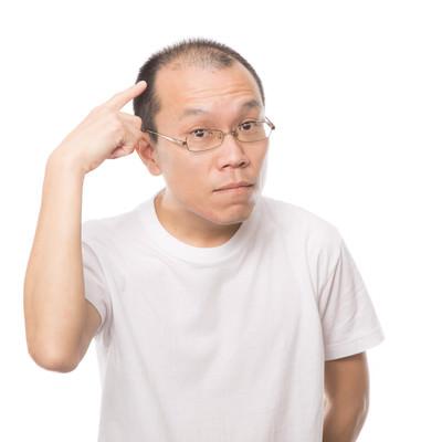 「チャームポイントはM字禿げです。」の写真素材