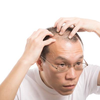 「M字ハゲを気にする男性」の写真素材