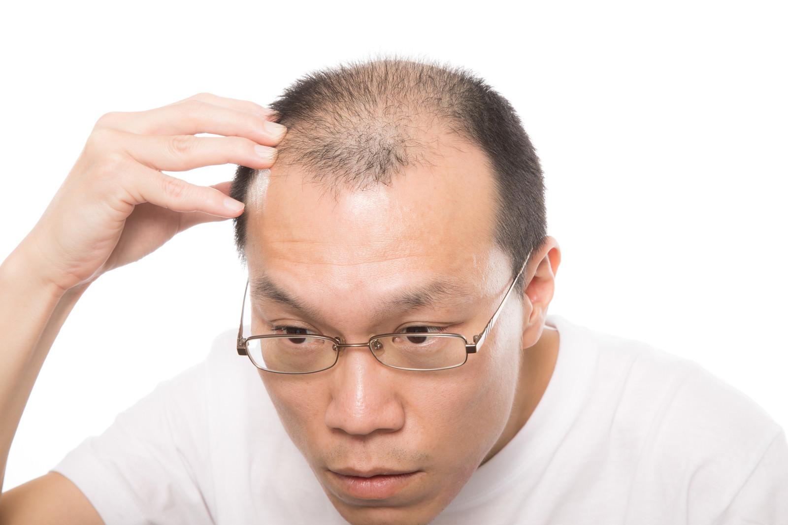 「ストレスでハゲてしまった男性」の写真[モデル:サンライズ鈴木]