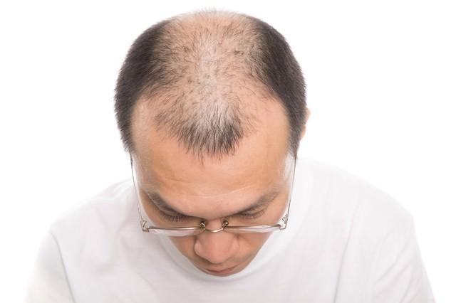 前頭部と頭頂部が薄い男性(上から)の写真