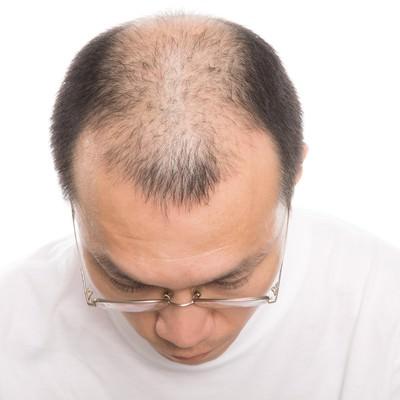 「薄毛男性の頭部」の写真素材