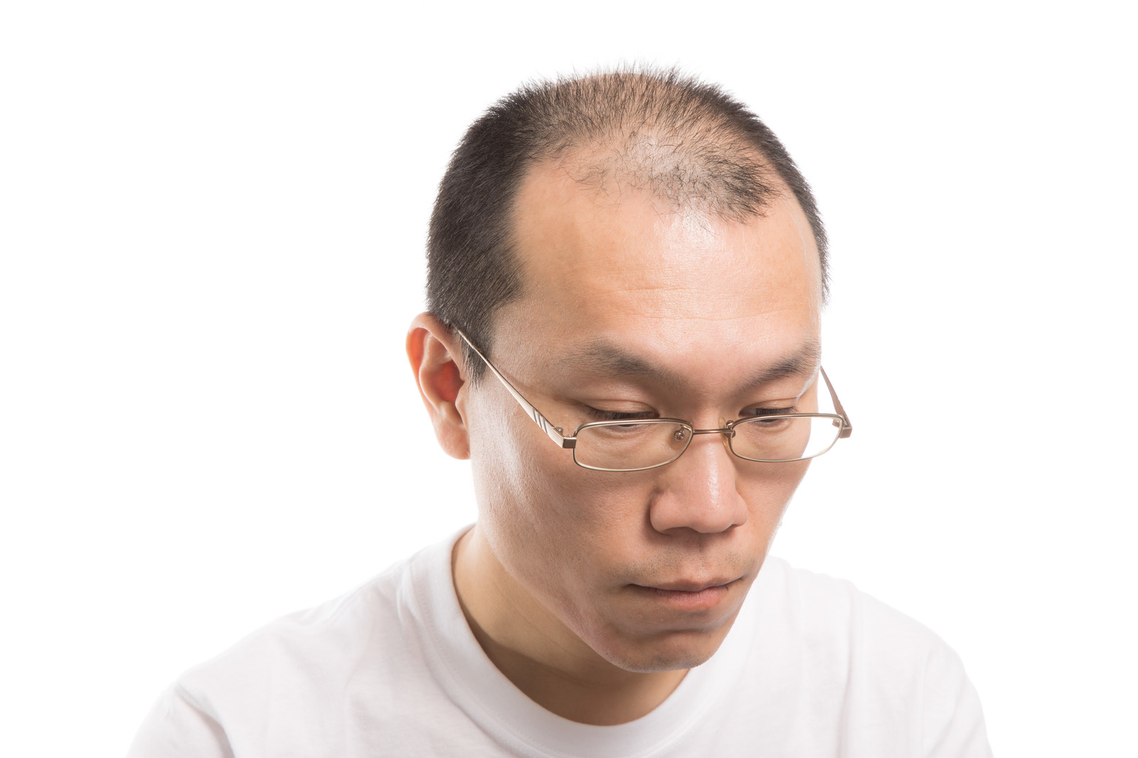 「M字禿げの男性」の写真[モデル:サンライズ鈴木]