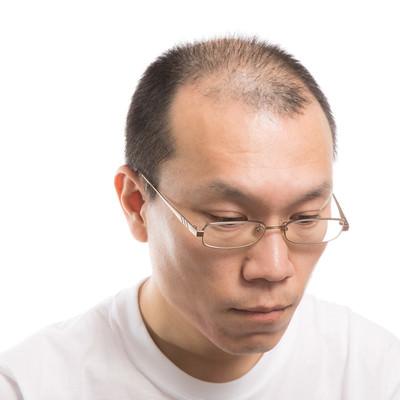 M字禿げの男性の写真
