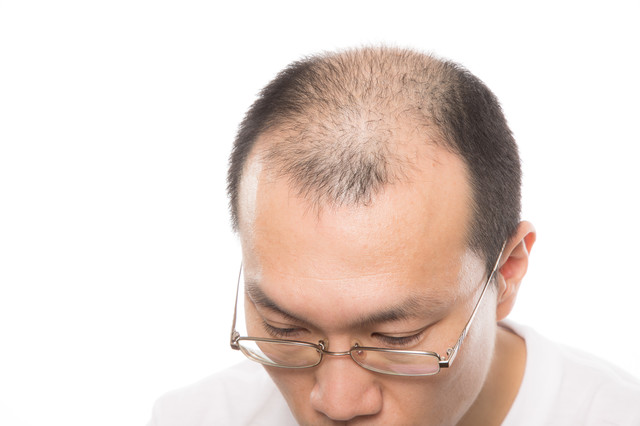 AGA(男性型脱毛症)の男性の写真