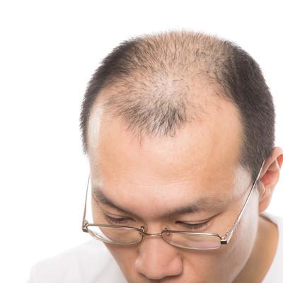 「AGA(男性型脱毛症)の男性」の写真素材