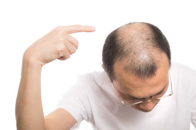 頭頂部のハゲを指差す男性の写真