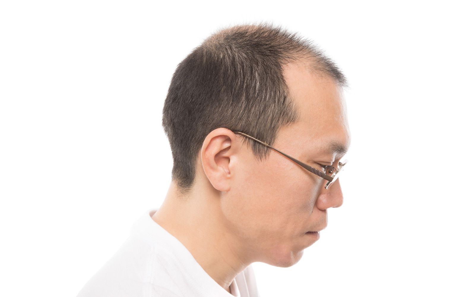 「M字ハゲの男性(横顔)」の写真[モデル:サンライズ鈴木]