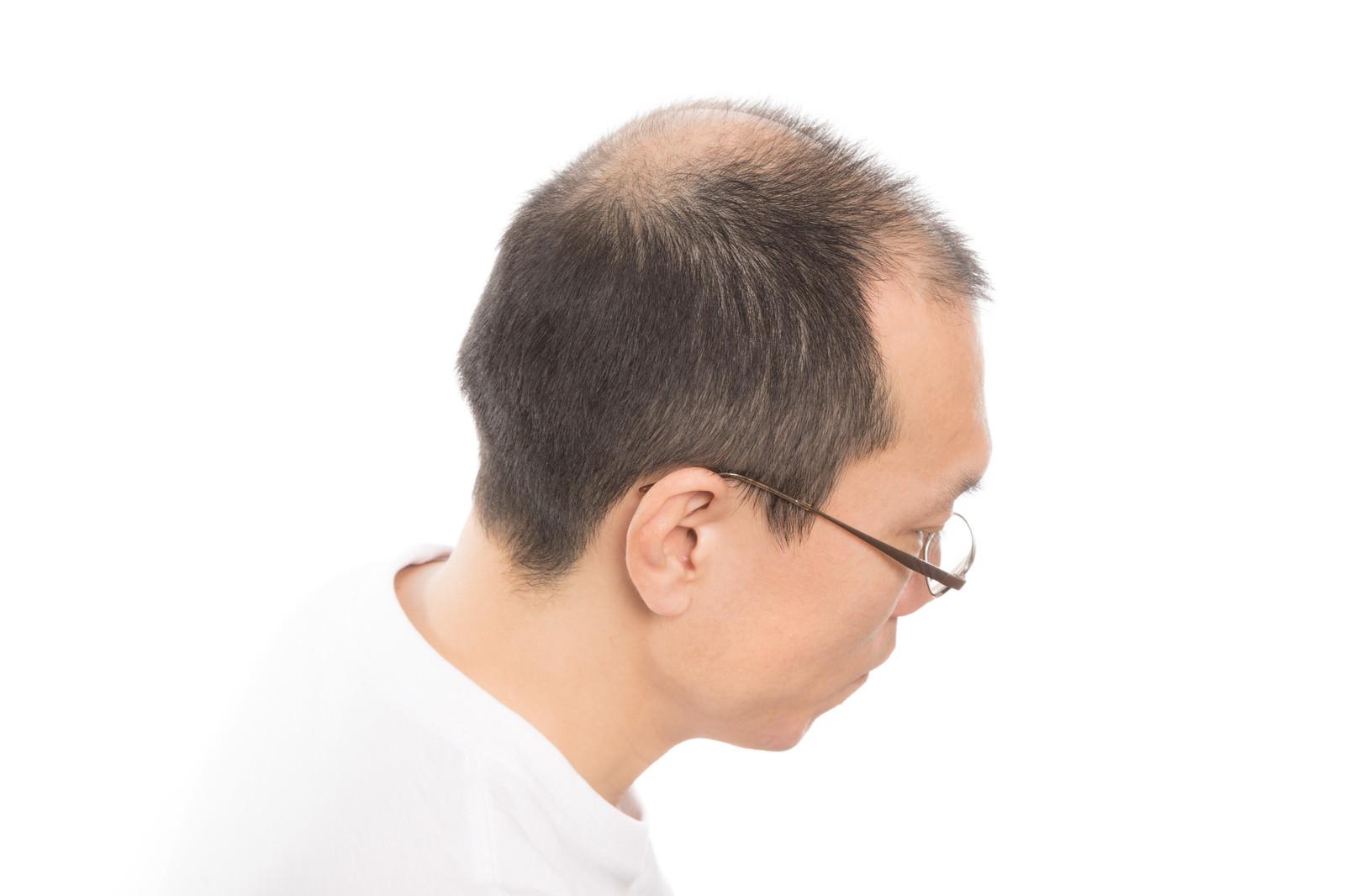 「M字と頭頂部が薄いアラフォー男性の頭部」の写真[モデル:サンライズ鈴木]