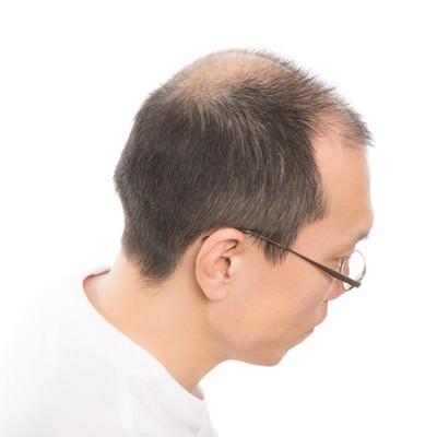 M字と頭頂部が薄いアラフォー男性の頭部の写真
