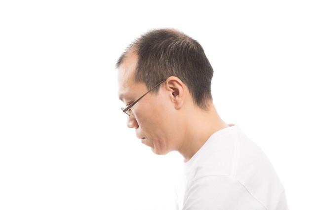 薄毛男性の横顔の写真