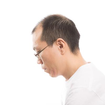「薄毛男性の横顔」の写真素材