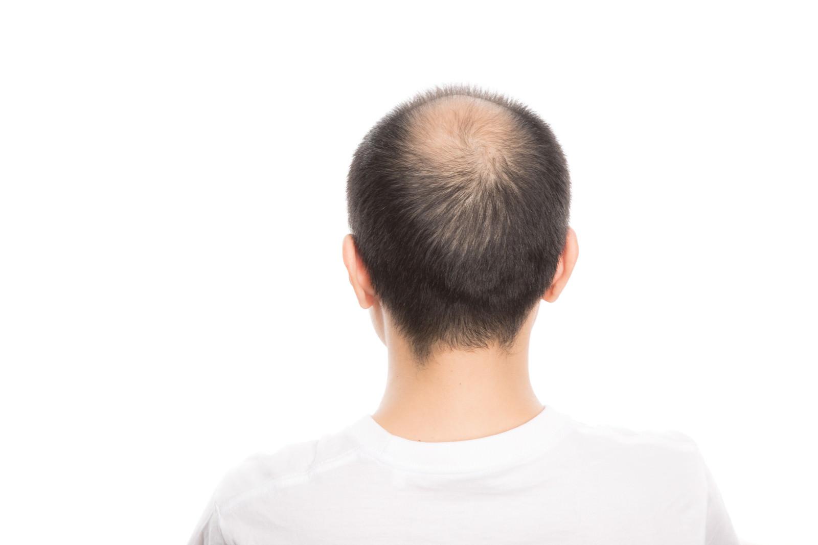 「頭頂部が薄毛(男性型脱毛症)の男性の後ろ姿」の写真[モデル:サンライズ鈴木]