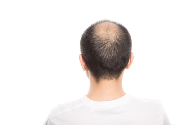 頭頂部が薄毛(男性型脱毛症)の男性の後ろ姿の写真