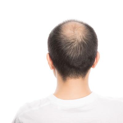 「頭頂部が薄毛(男性型脱毛症)の男性の後ろ姿」の写真素材